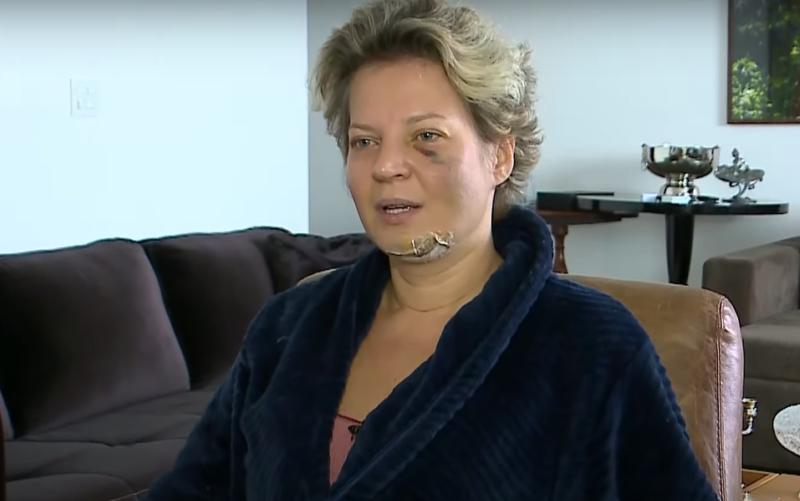Deputada sofre acidente misterioso e tem cinco fraturas na face